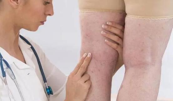 小腿水肿是较为常见的症状指的是在小腿血管外的组织间隙中堆积着一些体液