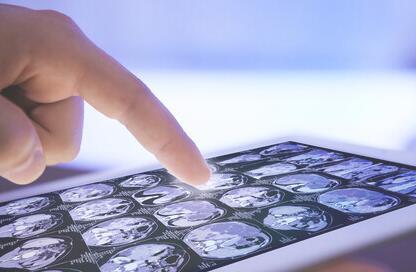 移动设备 现代化和提高医疗质量