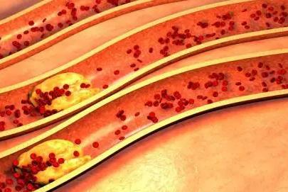 血管在经过长年无休的工作之后就很容易出现老化