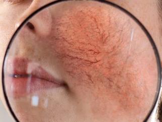 痤疮好发于面颈胸背肩等皮脂分泌旺盛的部位