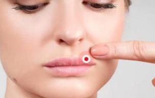 人的口唇表现出不同的形态和颜色能反映出脏腑疾病