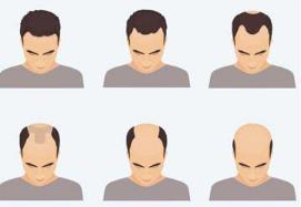 常见的脱发类型有雄激素性秃发斑秃和休止期脱发