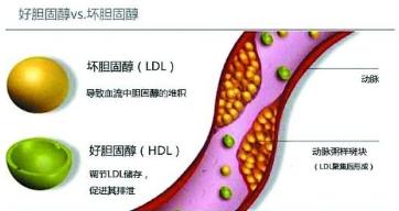 控制胆固醇水平升高是防控冠心病的关键举措