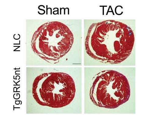 停止信号分子的基因调节活性有助于预防心力衰竭