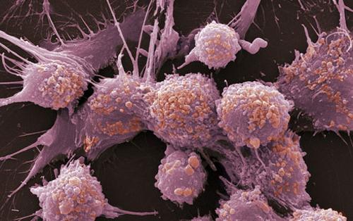 研究发现ALL患者接受治疗一个月后可检测到的癌细胞风险降低了70%