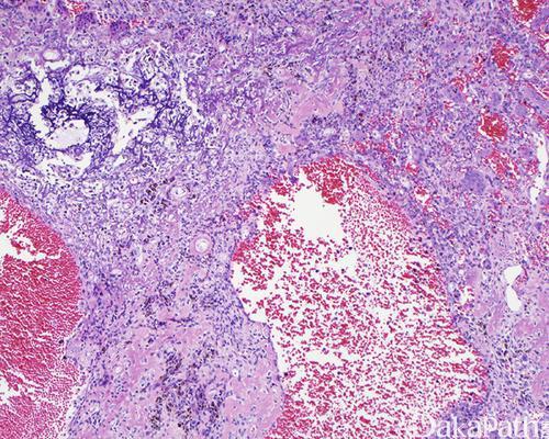 肌炎特异性自身反应性T细胞是皮肌炎的致病菌