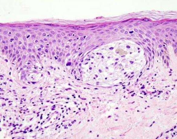 确定STING基因甲基化可让黑色素瘤逃避免疫系统