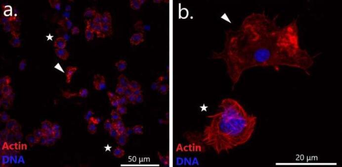 生物学家在远东贻贝中发现了可传播的癌症谱系