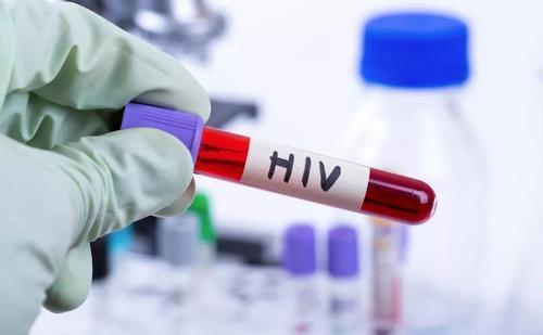 新测试可以更好地检测艾滋病毒患者中的病毒库