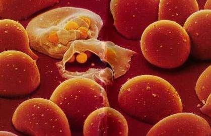 耐药性疟疾突变获得的首批临床证据