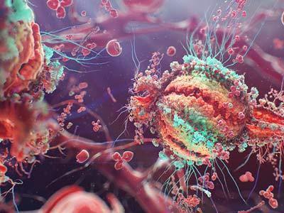 三联疗法显示出对罕见的致命石棉癌的希望
