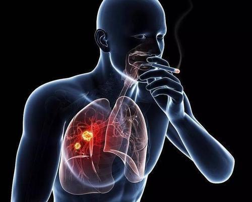 研究人员确定了肺癌中的遗传标记物集