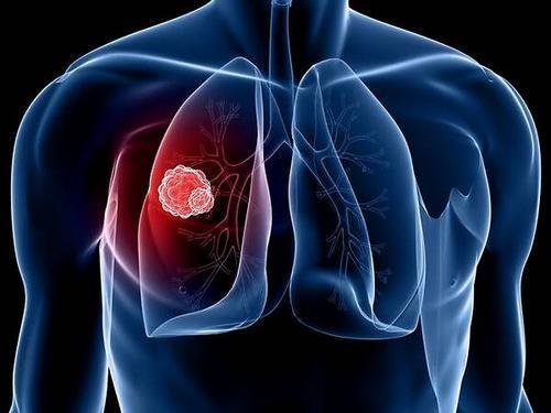 单独的免疫疗法可延长具有KRAS突变转移性肺癌患者的寿命