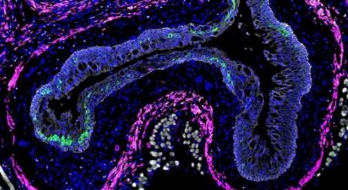 肠道蠕虫会削弱其他地方的免疫反应