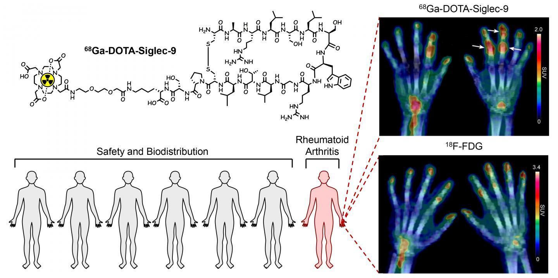 新型PET放射性药物的首次人体研究有希望的结果