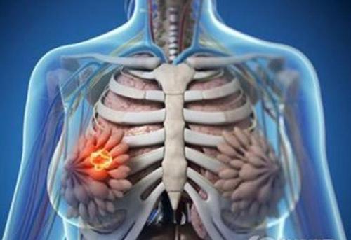 新研究揭示靶向治疗在早期乳腺癌中的作用