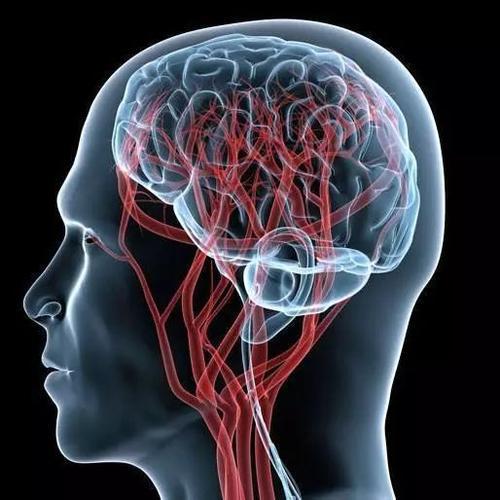 黑人与西班牙裔中风幸存者更容易出现脑血管变化