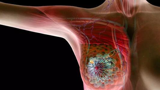 新型药物在治疗最具侵略性的乳腺癌中显示出希望