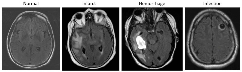基于AI的系统可以帮助对脑MRI进行分类