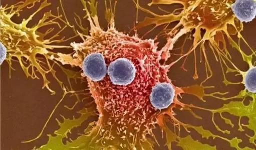 研究表明T细胞和树突状细胞在对标准治疗有抗药性的患者中的作用