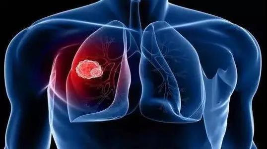 雕刻放射线可以使肺癌患者免于严重的致残性并发症