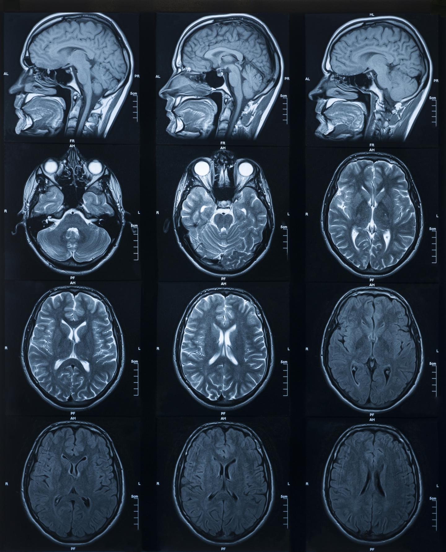 超高场MRI检测大脑海马的差异