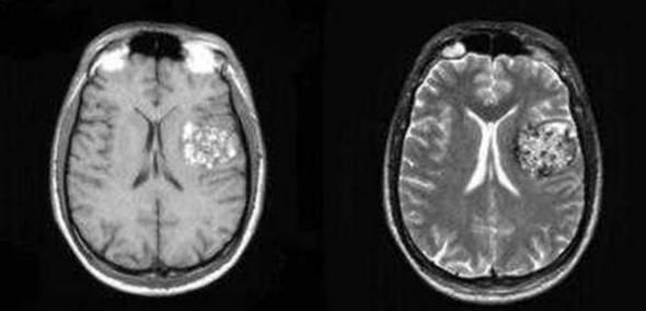 新发现可改善脆性X综合征患者认知功能的治疗