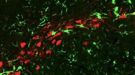 科学家们长期致力于发现这些神经元死亡的原因