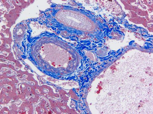 研究首次显示蛋白质复合物炎症小体与肥胖相关的结肠癌有关