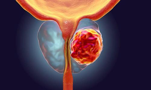 研究人员使用环境数据评估前列腺癌的诊断因素