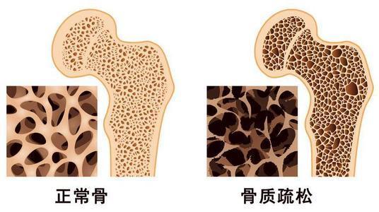 出生体重与以后的骨质疏松症风险有关