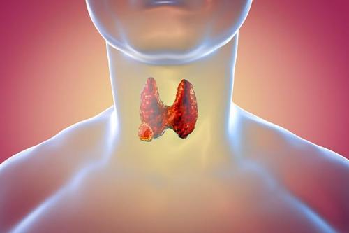 甲状腺癌是最常见的内分泌癌之一