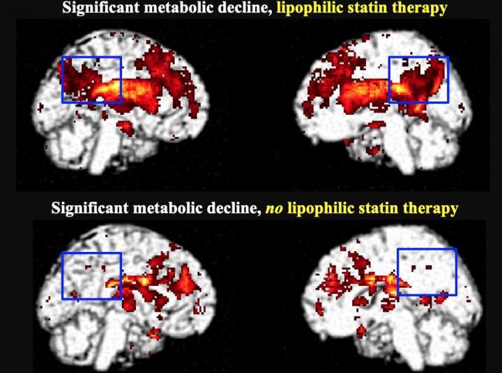 亲脂性他汀类药物的使用与痴呆风险增加有关