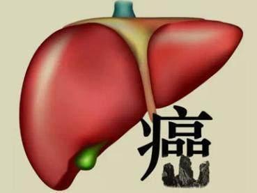三分之一患有儿童期HCV的年轻人患有严重肝病