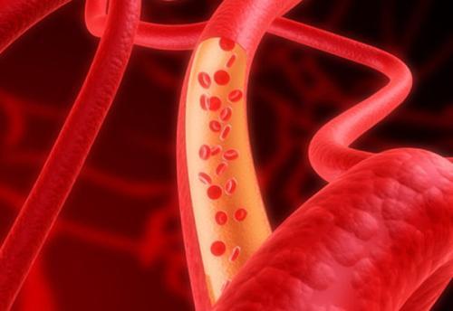 新研究揭示了治疗血流感染的副作用较少