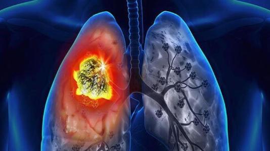 研究发现 尼古丁促进肺癌细胞向大脑扩散