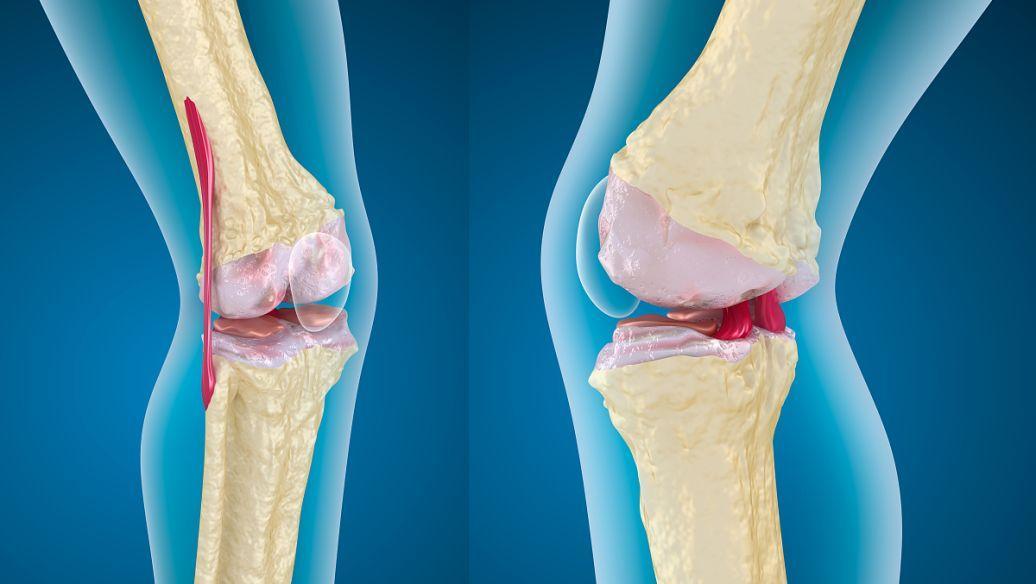 研究表明遗传标志物可用于预测骨质疏松性骨折的风险