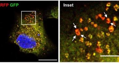 抗腹泻药驱使癌细胞死亡