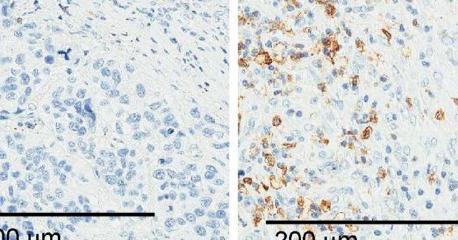 研究人员鉴定出有助于肺癌细胞逃避免疫系统的RNA分子