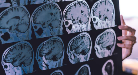 了解阿尔茨海默氏症和痴呆症的医学差异