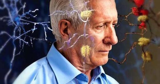 新的成像工具可帮助研究人员了解阿尔茨海默氏症早期损伤的程度