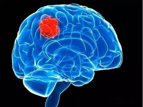 研究表明改善胶质母细胞瘤放射治疗抵抗力的新方法
