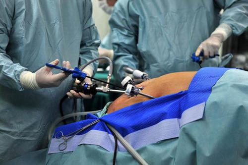 减肥手术可使血中酒精浓度峰值加倍患者可能不知道