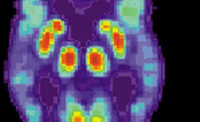 研究人员展示了如何针对阿尔茨海默氏病中的变形蛋白