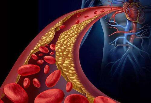 研究表明减肥手术对肥胖青少年心血管疾病风险的影响