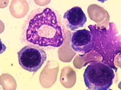 介绍下异常骨髓细胞的形态变化特点及意义
