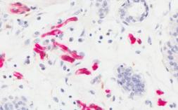 UofL研究人员描述了肥胖与乳腺癌之间联系的可能机制