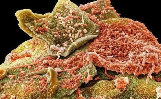 引起蛀牙的细菌在人的牙齿上聚集了一大批保护性微生物