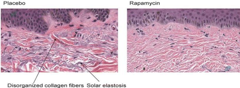 二甲双胍和雷帕霉素可以作为维持疗法的探索性研究