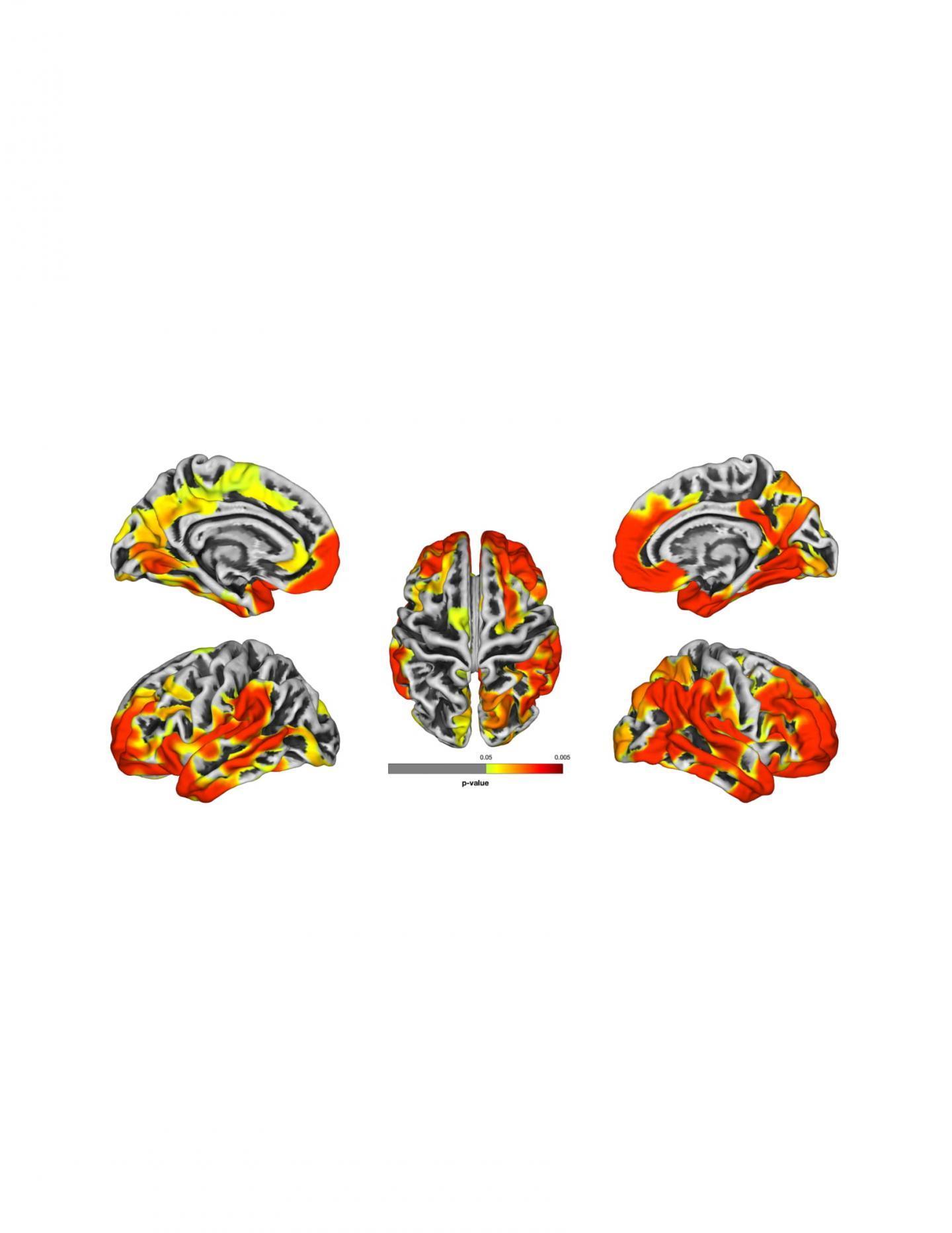 研究表明进一步的证据表明世贸中心反应者存在痴呆症风险